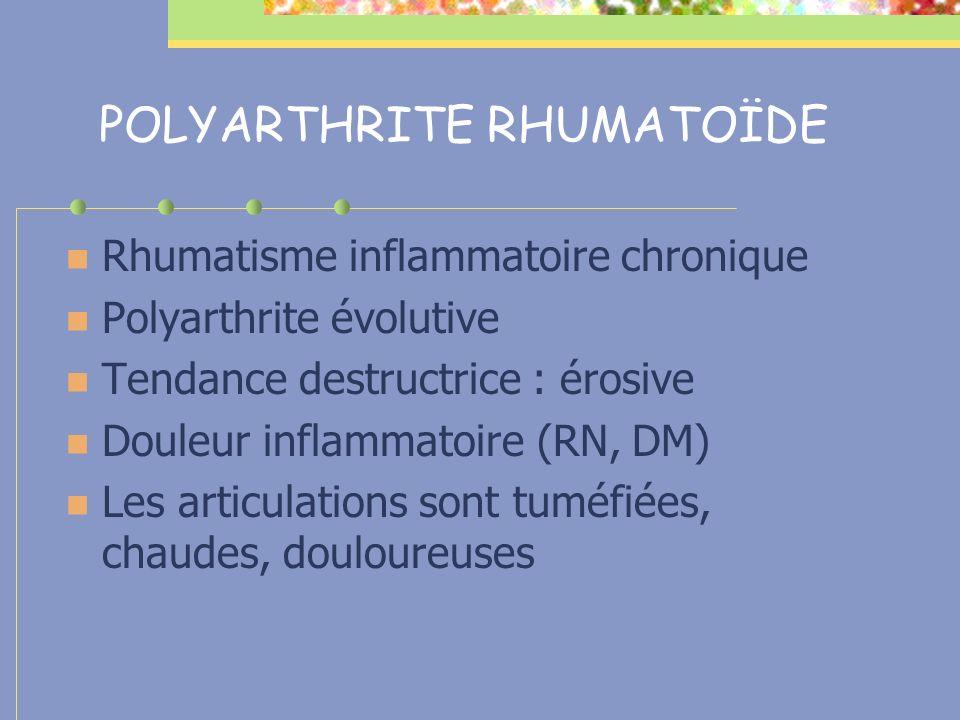 POLYARTHRITE RHUMATOÏDE Rhumatisme inflammatoire chronique Polyarthrite évolutive Tendance destructrice : érosive Douleur inflammatoire (RN, DM) Les a