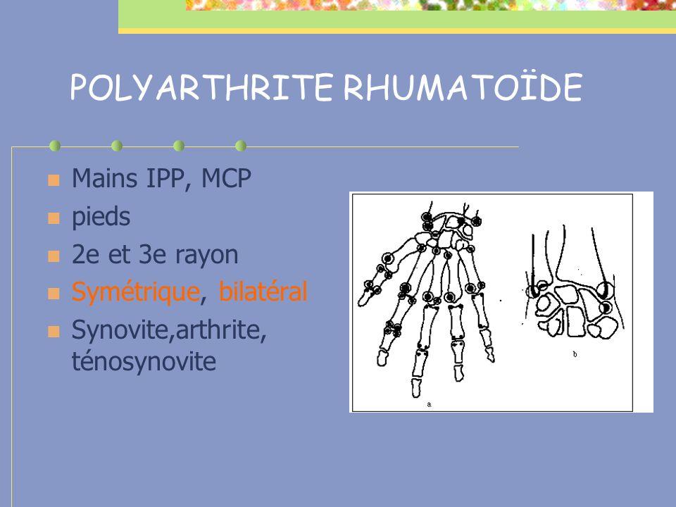 POLYARTHRITE RHUMATOÏDE Doigts Aspect fusiforme Poignet Synovite poignet Synovite extenseurs Creusement des interosseux Synovite fléchisseurs