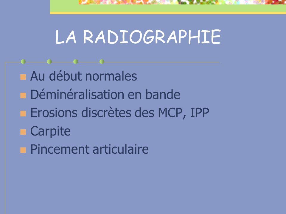 LA RADIOGRAPHIE Au début normales Déminéralisation en bande Erosions discrètes des MCP, IPP Carpite Pincement articulaire