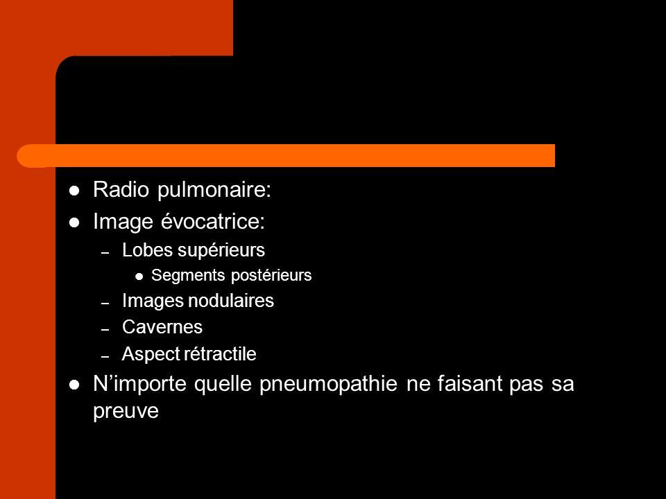 Radio pulmonaire: Image évocatrice: – Lobes supérieurs Segments postérieurs – Images nodulaires – Cavernes – Aspect rétractile Nimporte quelle pneumop