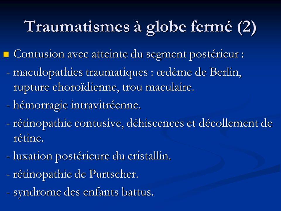Traumatismes à globe fermé (2) Contusion avec atteinte du segment postérieur : Contusion avec atteinte du segment postérieur : - maculopathies traumat