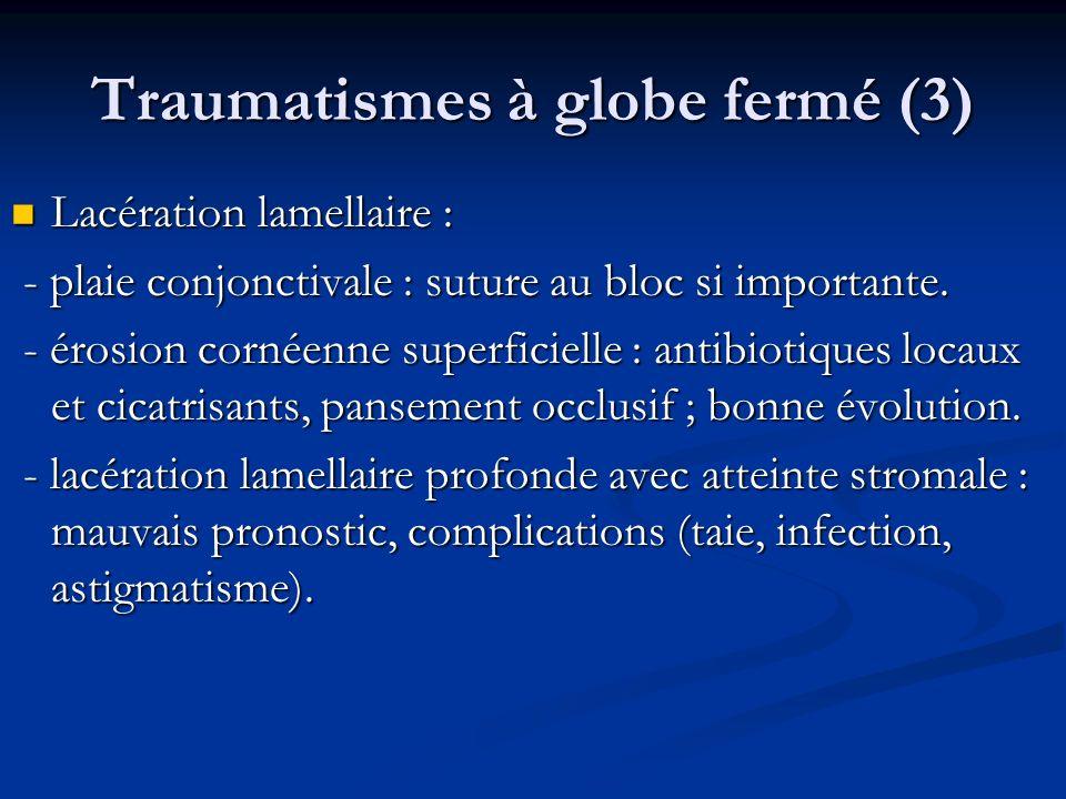 Traumatismes à globe fermé (3) Lacération lamellaire : Lacération lamellaire : - plaie conjonctivale : suture au bloc si importante. - plaie conjoncti