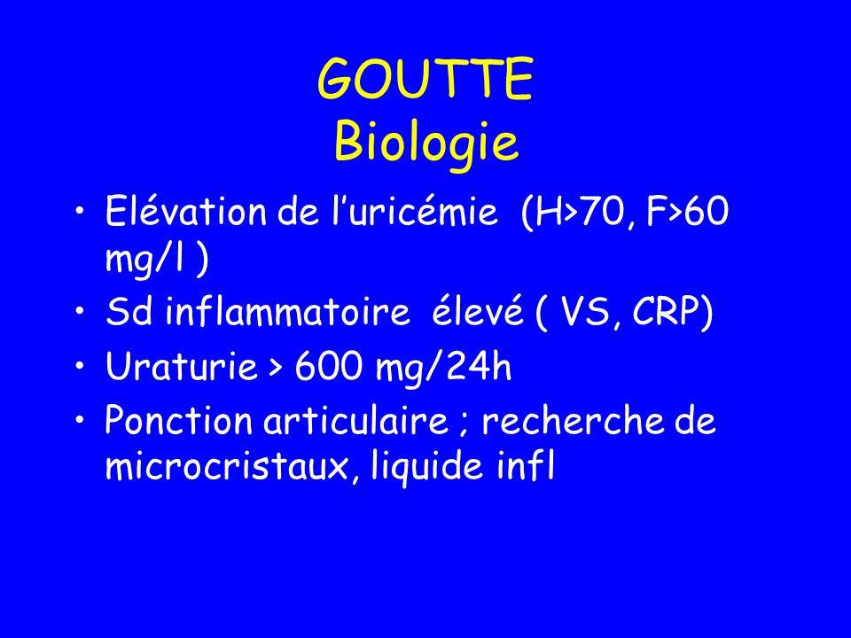 GOUTTE Biologie Elévation de luricémie (H>70, F>60 mg/l ) Sd inflammatoire élevé ( VS, CRP) Uraturie > 600 mg/24h Ponction articulaire ; recherche de