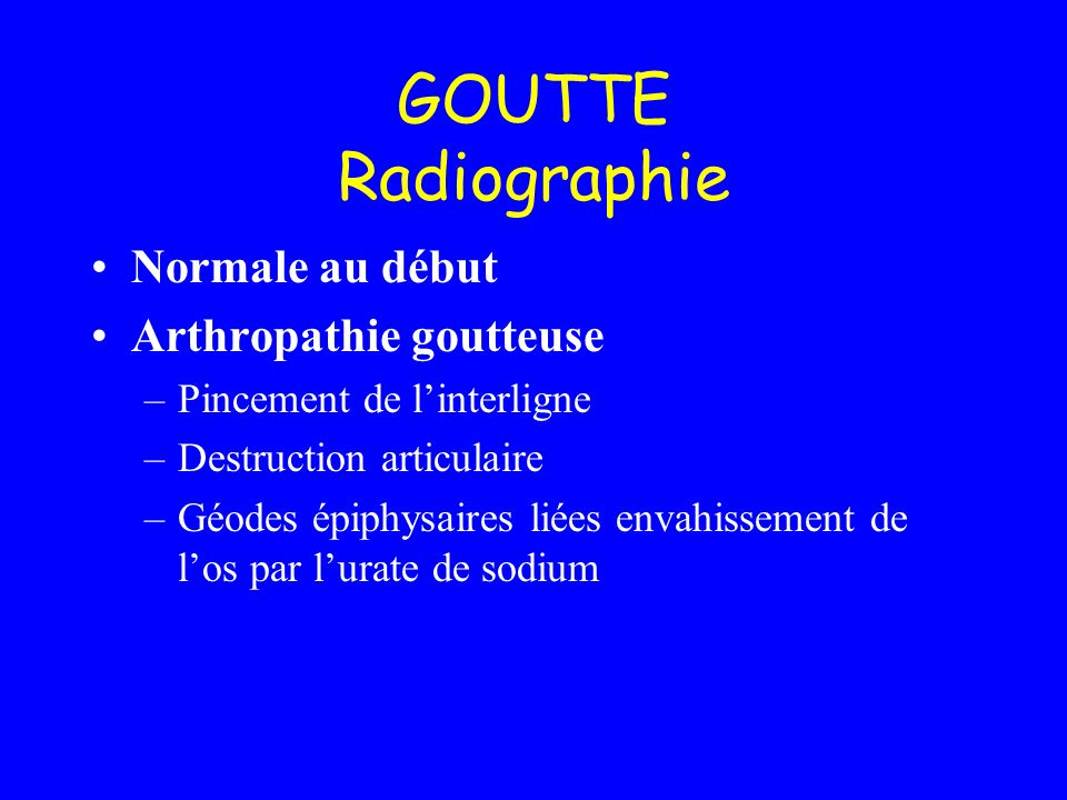 GOUTTE Radiographie Normale au début Arthropathie goutteuse –Pincement de linterligne –Destruction articulaire –Géodes épiphysaires liées envahissemen