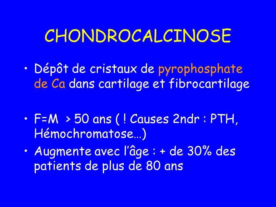 CHONDROCALCINOSE Dépôt de cristaux de pyrophosphate de Ca dans cartilage et fibrocartilage F=M > 50 ans ( ! Causes 2ndr : PTH, Hémochromatose…) Augmen