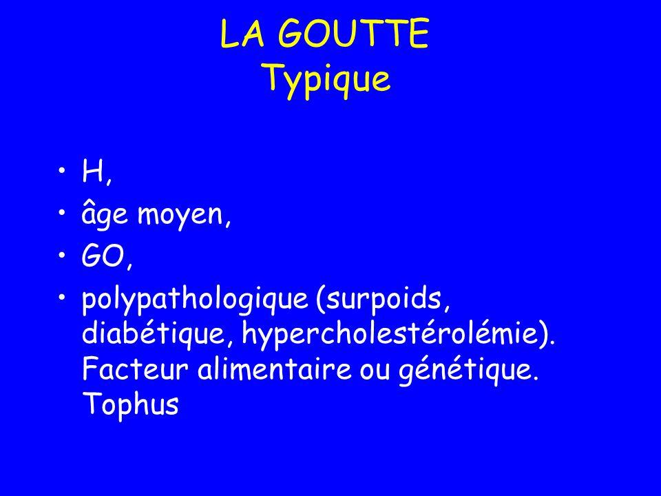 LA GOUTTE Typique H, âge moyen, GO, polypathologique (surpoids, diabétique, hypercholestérolémie). Facteur alimentaire ou génétique. Tophus