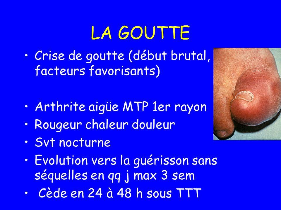 LA GOUTTE Crise de goutte (début brutal, facteurs favorisants) Arthrite aigüe MTP 1er rayon Rougeur chaleur douleur Svt nocturne Evolution vers la gué
