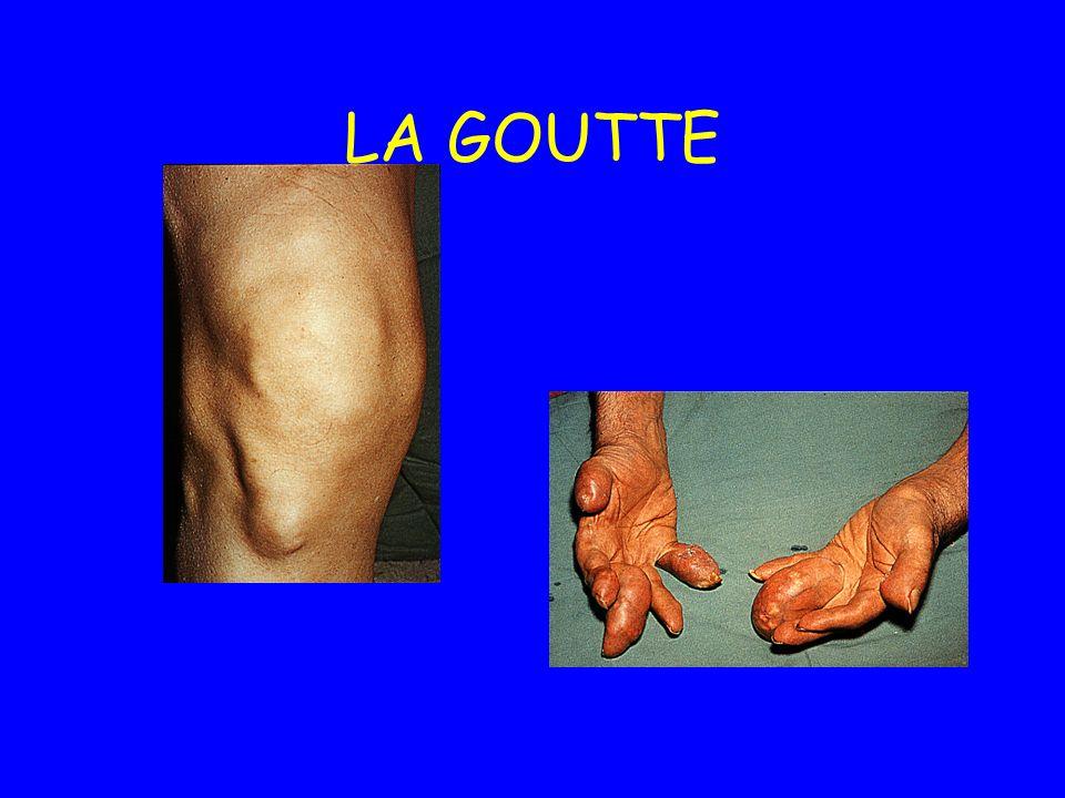 Les arthropathies goutteuses –Siège même endroit que les tophus –Responsable impotence fonctionnelle sévère Les atteintes rénales : lithiases, IR