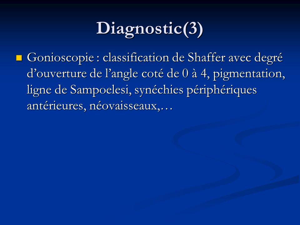 Diagnostic(3) Gonioscopie : classification de Shaffer avec degré douverture de langle coté de 0 à 4, pigmentation, ligne de Sampoelesi, synéchies péri
