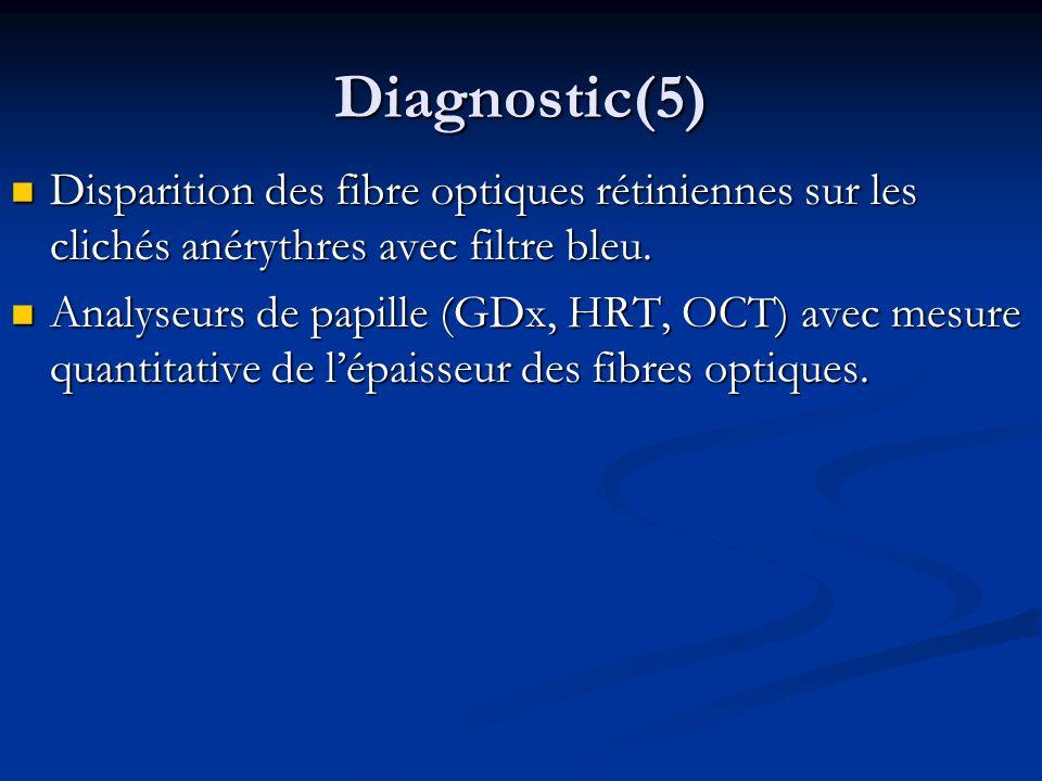 Diagnostic(5) Disparition des fibre optiques rétiniennes sur les clichés anérythres avec filtre bleu. Disparition des fibre optiques rétiniennes sur l