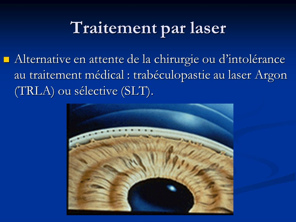 Traitement par laser Alternative en attente de la chirurgie ou dintolérance au traitement médical : trabéculopastie au laser Argon (TRLA) ou sélective