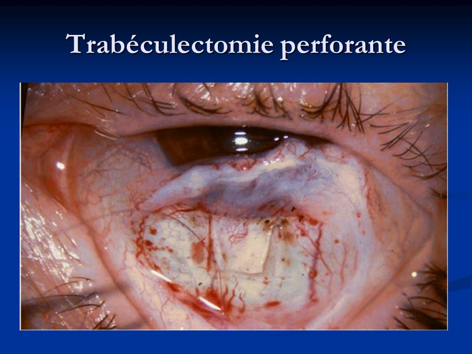 Trabéculectomie perforante