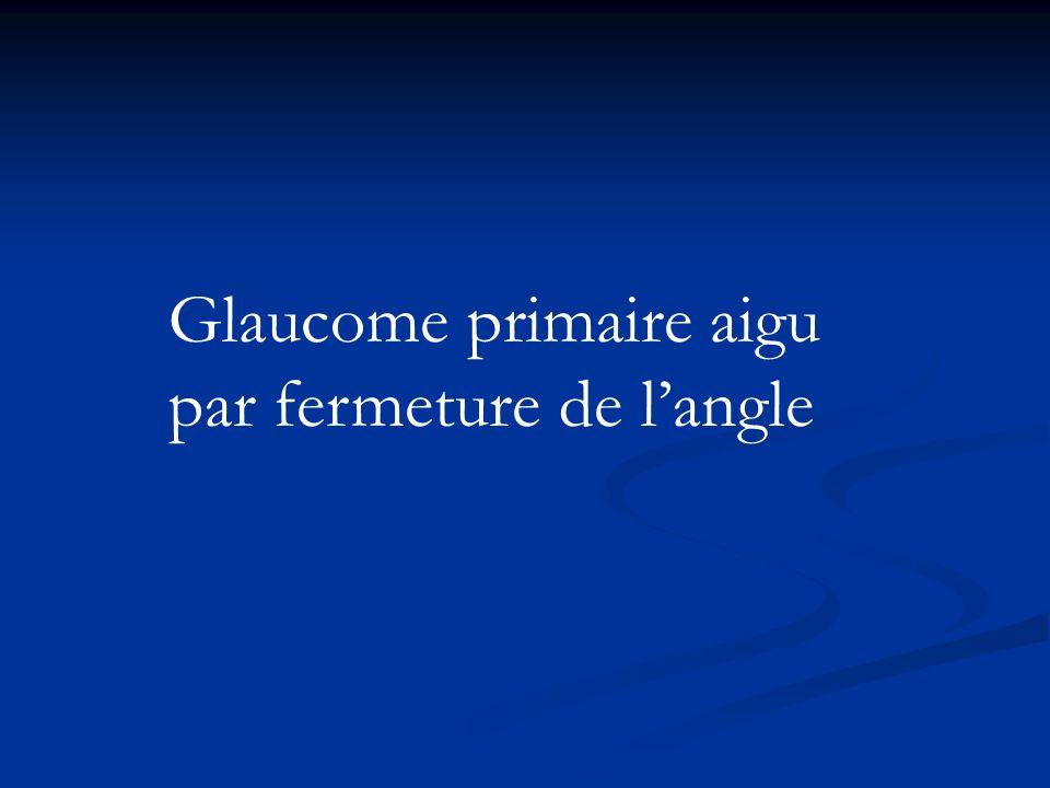 Glaucome primaire aigu par fermeture de langle
