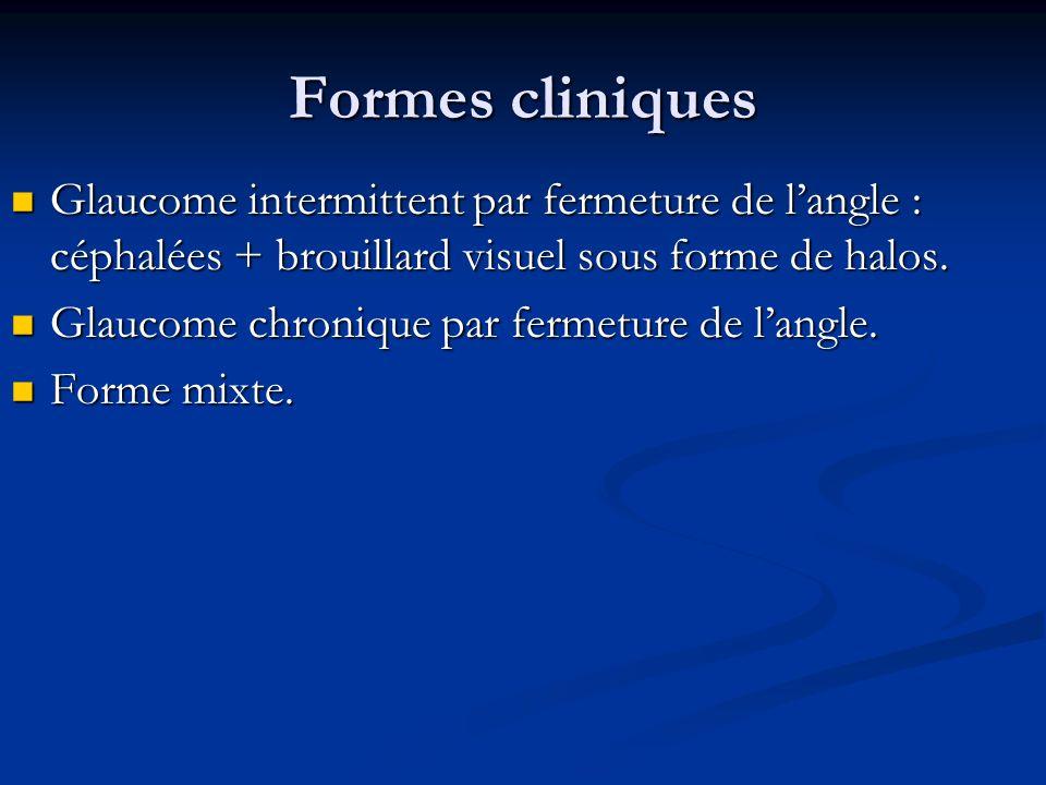 Formes cliniques Glaucome intermittent par fermeture de langle : céphalées + brouillard visuel sous forme de halos. Glaucome intermittent par fermetur
