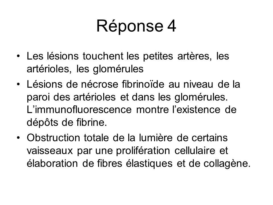 Réponse 4 Les lésions touchent les petites artères, les artérioles, les glomérules Lésions de nécrose fibrinoïde au niveau de la paroi des artérioles