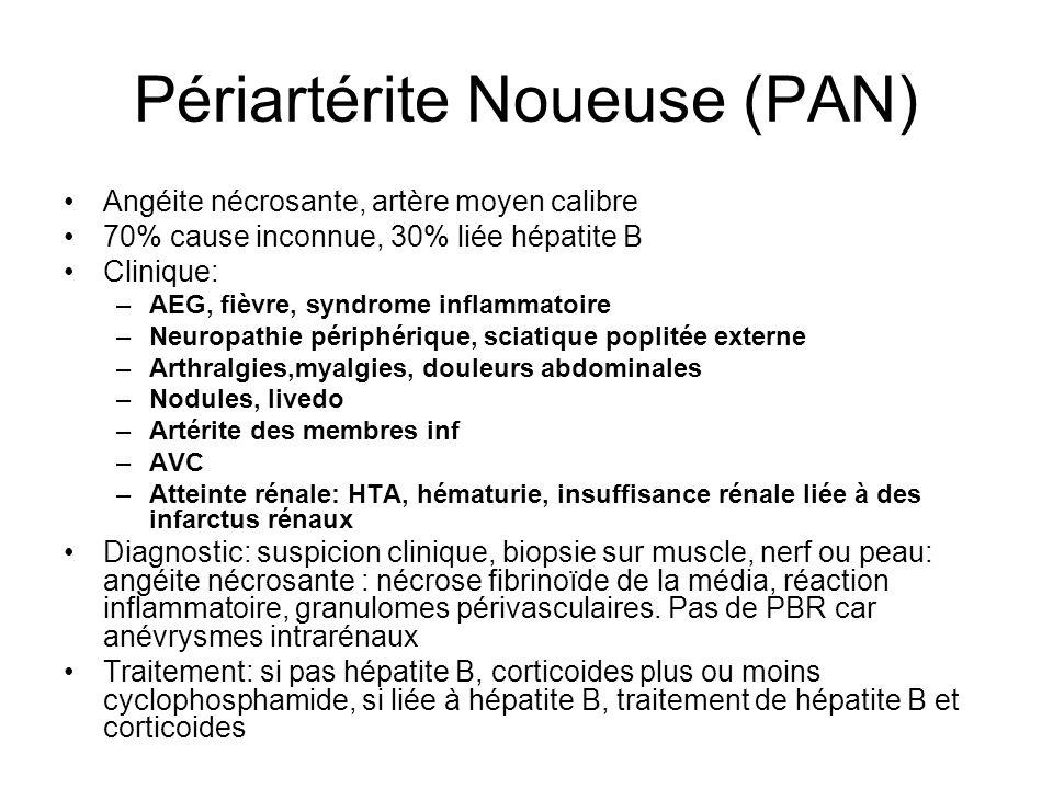 Périartérite Noueuse (PAN) Angéite nécrosante, artère moyen calibre 70% cause inconnue, 30% liée hépatite B Clinique: –AEG, fièvre, syndrome inflammat