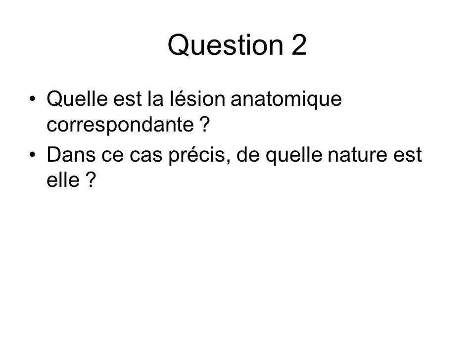 Question 2 Quelle est la lésion anatomique correspondante ? Dans ce cas précis, de quelle nature est elle ?