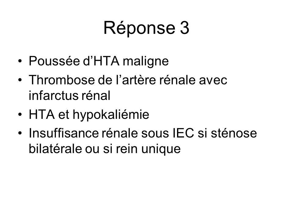 Réponse 3 Poussée dHTA maligne Thrombose de lartère rénale avec infarctus rénal HTA et hypokaliémie Insuffisance rénale sous IEC si sténose bilatérale