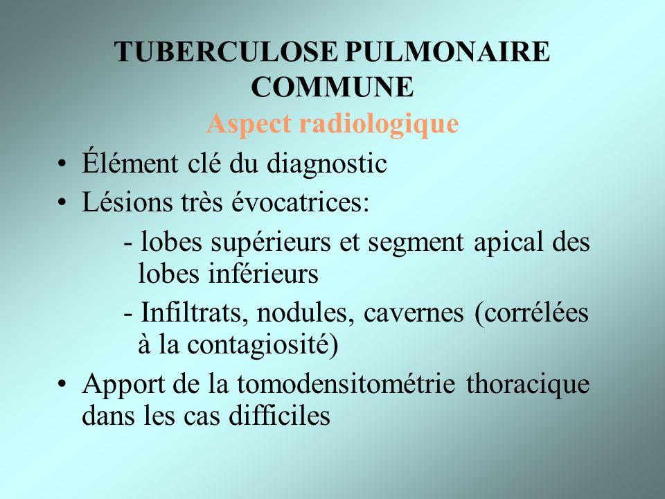 TUBERCULOSE PULMONAIRE COMMUNE Aspect radiologique Élément clé du diagnostic Lésions très évocatrices: - lobes supérieurs et segment apical des lobes