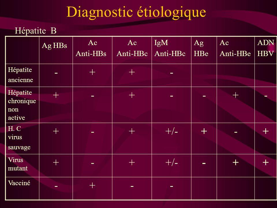 Diagnostic étiologique Hépatite B Ag HBs Ac Anti-HBs Ac Anti-HBc IgM Anti-HBc Ag HBe Ac Anti-HBe ADN HBV Hépatite ancienne -++- Hépatite chronique non