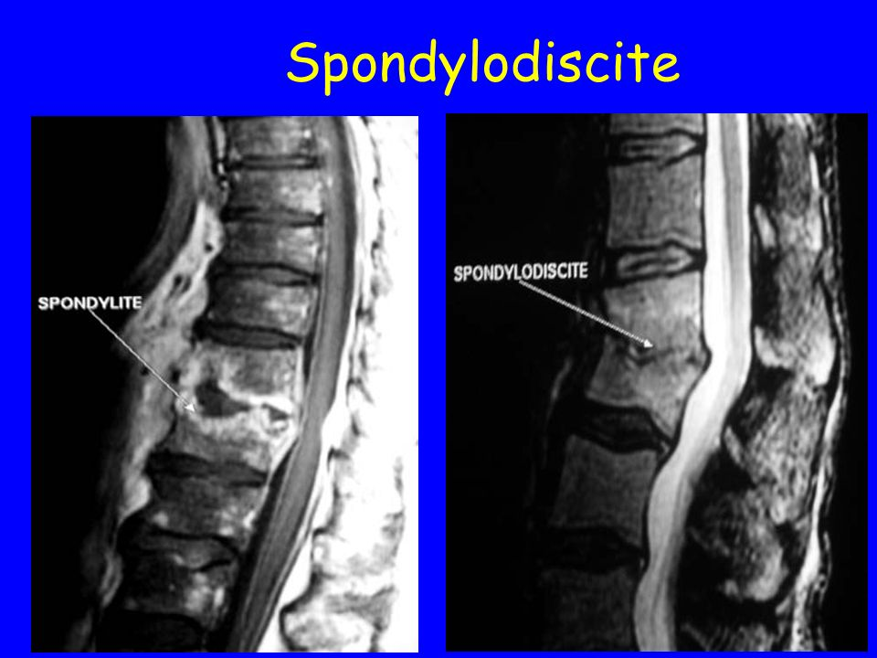Spondylodiscite