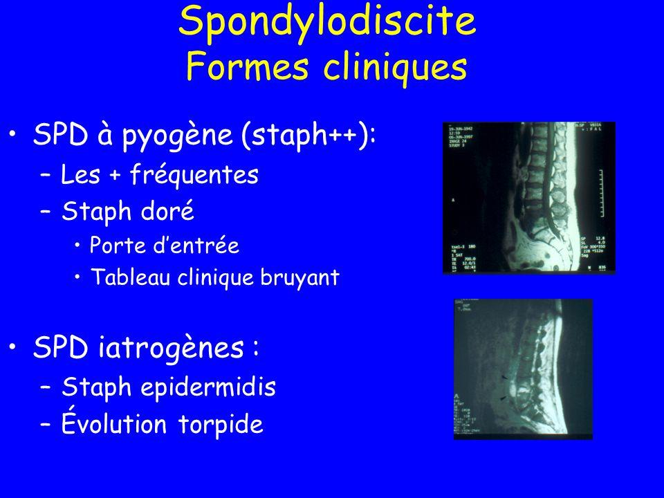 Spondylodiscite Formes cliniques SPD à pyogène (staph++): –Les + fréquentes –Staph doré Porte dentrée Tableau clinique bruyant SPD iatrogènes : –Staph