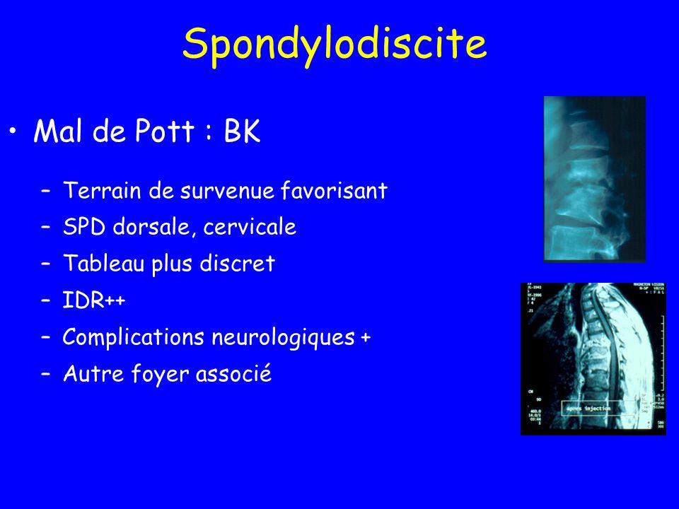 Spondylodiscite Mal de Pott : BK –Terrain de survenue favorisant –SPD dorsale, cervicale –Tableau plus discret –IDR++ –Complications neurologiques + –