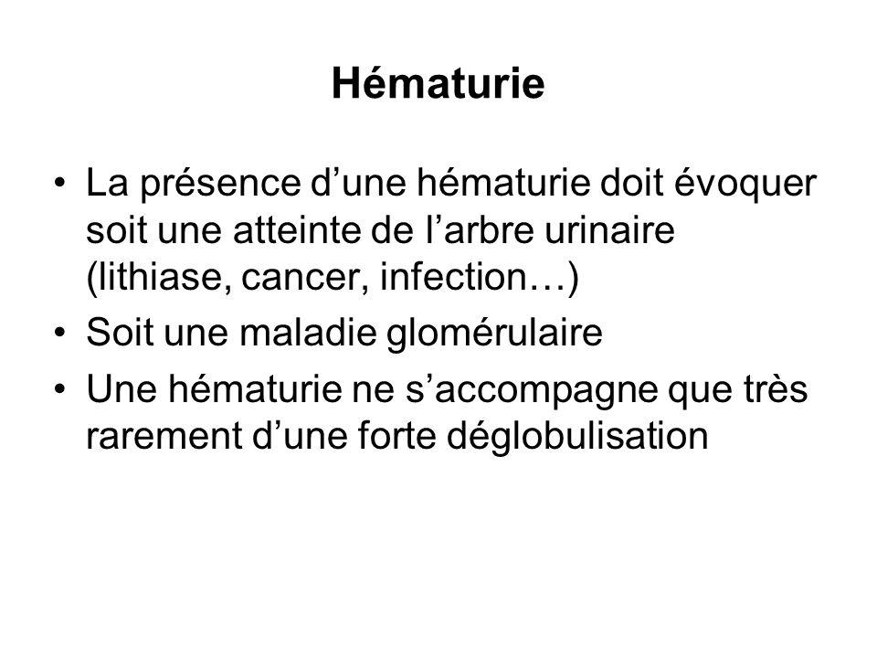 Hématurie La présence dune hématurie doit évoquer soit une atteinte de larbre urinaire (lithiase, cancer, infection…) Soit une maladie glomérulaire Un