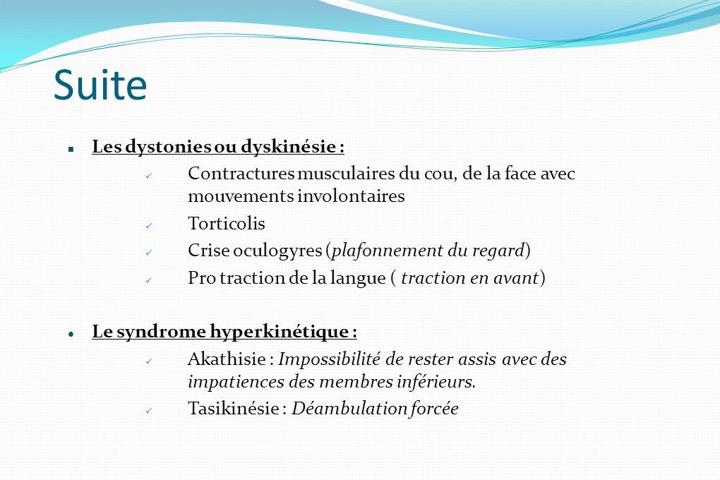Suite Les dystonies ou dyskinésie : Contractures musculaires du cou, de la face avec mouvements involontaires Torticolis Crise oculogyres (plafonnemen