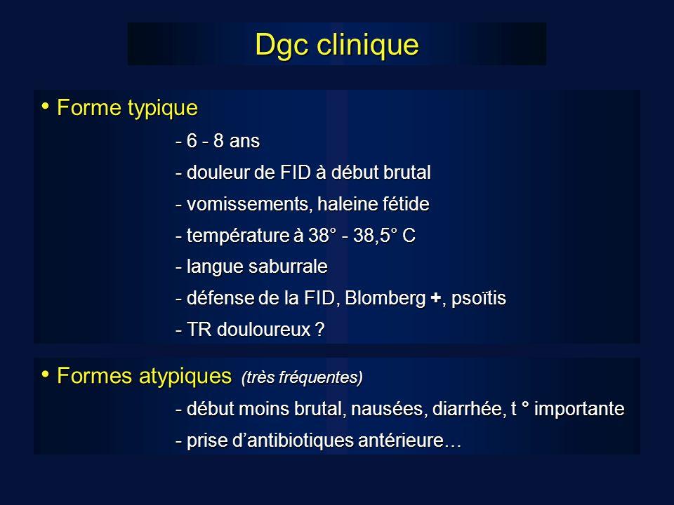 Dgc clinique Forme typique Forme typique - 6 - 8 ans - douleur de FID à début brutal - vomissements, haleine fétide - vomissements, haleine fétide - température à 38° - 38,5° C - langue saburrale - défense de la FID, Blomberg +, psoïtis - TR douloureux .