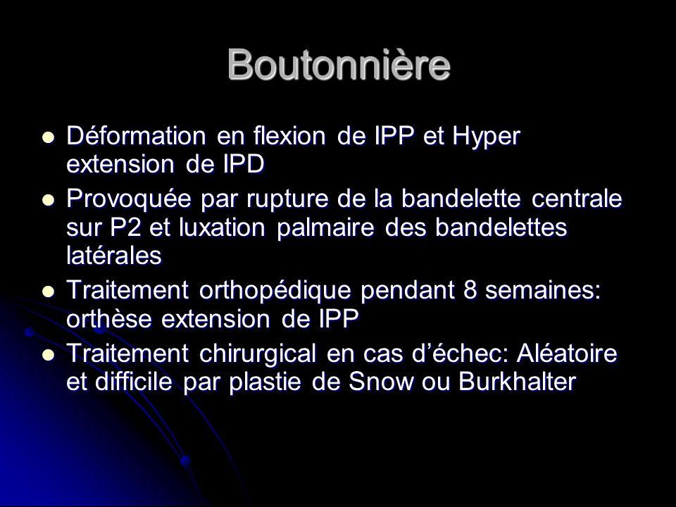 Boutonnière Déformation en flexion de IPP et Hyper extension de IPD Déformation en flexion de IPP et Hyper extension de IPD Provoquée par rupture de l