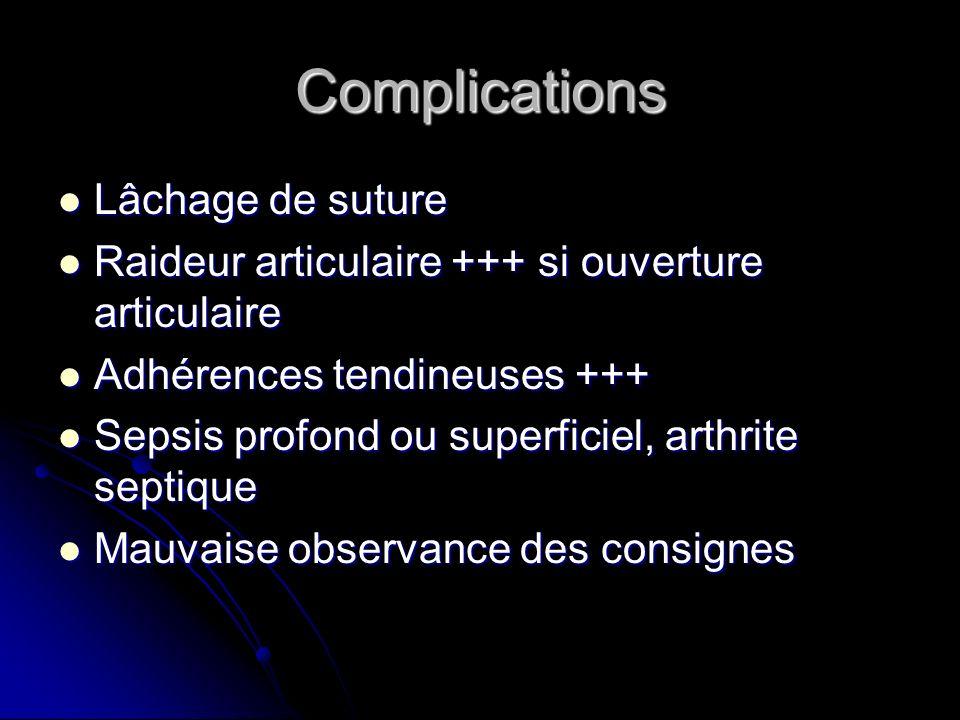 Complications Lâchage de suture Lâchage de suture Raideur articulaire +++ si ouverture articulaire Raideur articulaire +++ si ouverture articulaire Ad