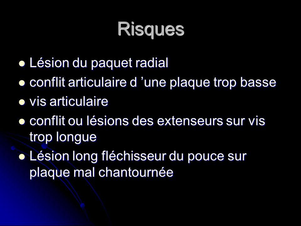 Risques Lésion du paquet radial Lésion du paquet radial conflit articulaire d une plaque trop basse conflit articulaire d une plaque trop basse vis ar