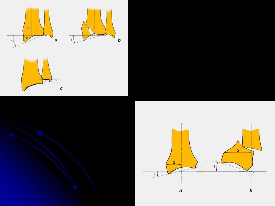 Traitement Technique de Matti-Russe ( pas d ostéosynthèse) Technique de Matti-Russe ( pas d ostéosynthèse) Greffe intercalaire Greffe intercalaire Greffe vascularisée Greffe vascularisée Vissage en compression Vissage en compression Bille en pyrocarbone Bille en pyrocarbone Résection de 1ère rangée Résection de 1ère rangée Dénervation Dénervation ScaphoÏdectomie et arthrodèse ScaphoÏdectomie et arthrodèse