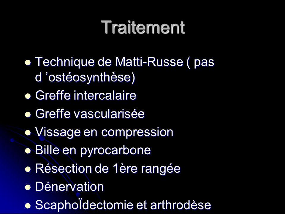 Traitement Technique de Matti-Russe ( pas d ostéosynthèse) Technique de Matti-Russe ( pas d ostéosynthèse) Greffe intercalaire Greffe intercalaire Gre