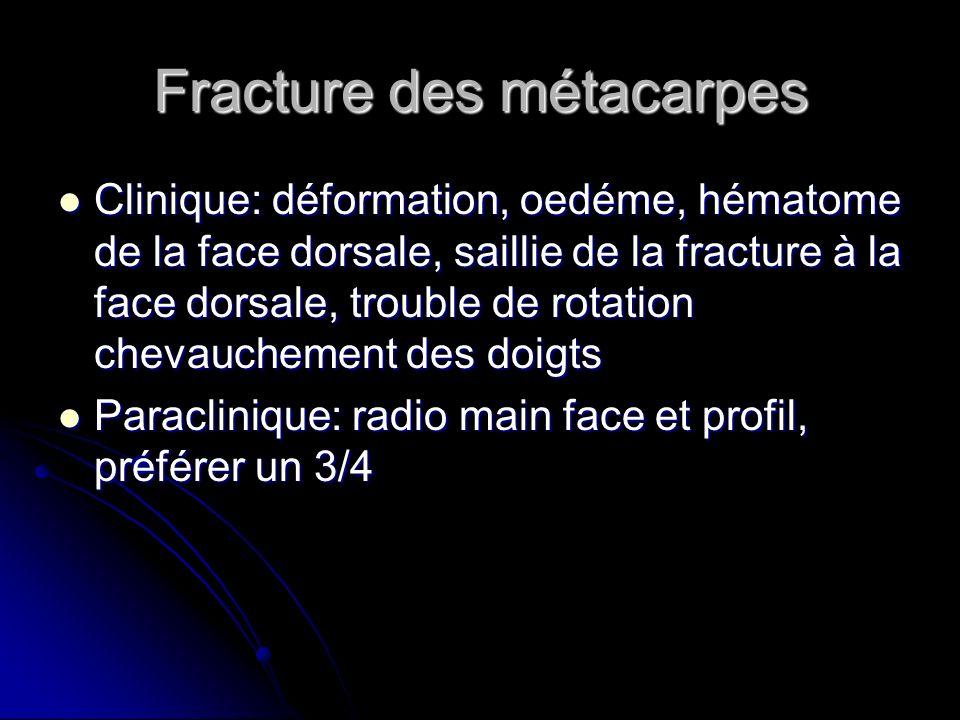 Fracture des métacarpes Clinique: déformation, oedéme, hématome de la face dorsale, saillie de la fracture à la face dorsale, trouble de rotation chev