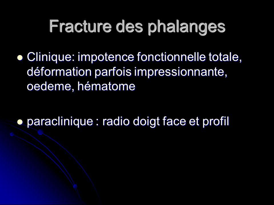 Fracture des phalanges Clinique: impotence fonctionnelle totale, déformation parfois impressionnante, oedeme, hématome Clinique: impotence fonctionnel