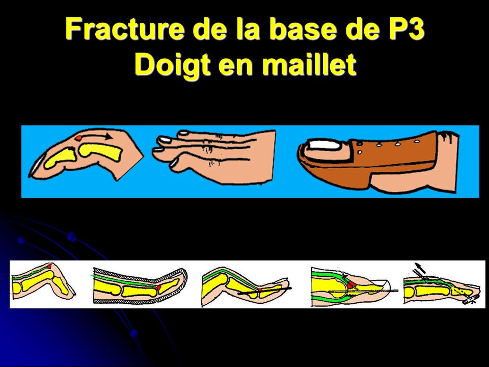 Fracture de la base de P3 Doigt en maillet Arrachement de linsertion du tendon extenseur