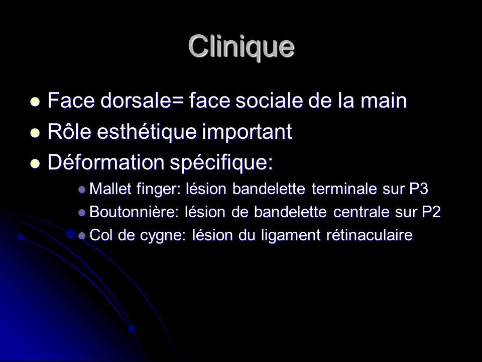 Clinique Face dorsale= face sociale de la main Face dorsale= face sociale de la main Rôle esthétique important Rôle esthétique important Déformation s