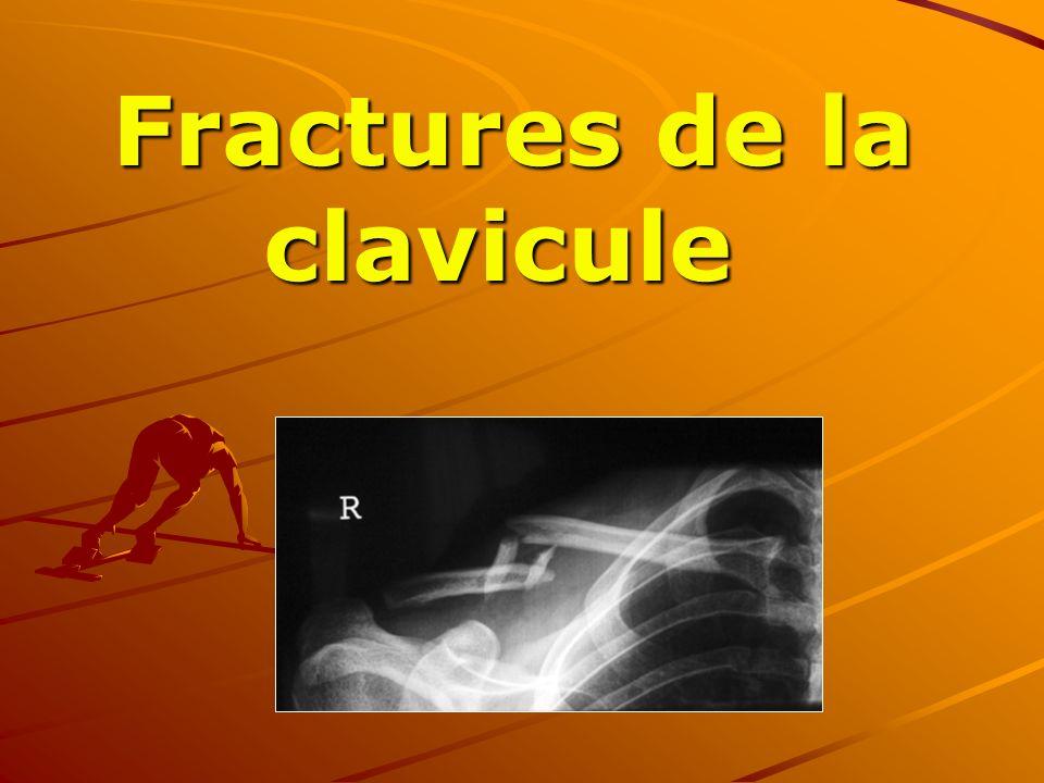Fractures de la clavicule Fractures de la clavicule