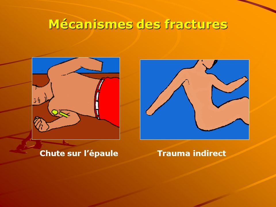 Mécanismes des fractures Chute sur lépaule Trauma indirect