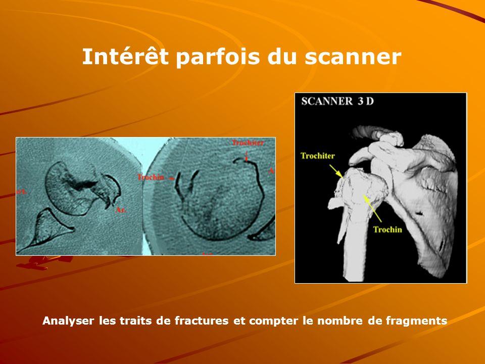 Analyser les traits de fractures et compter le nombre de fragments Intérêt parfois du scanner