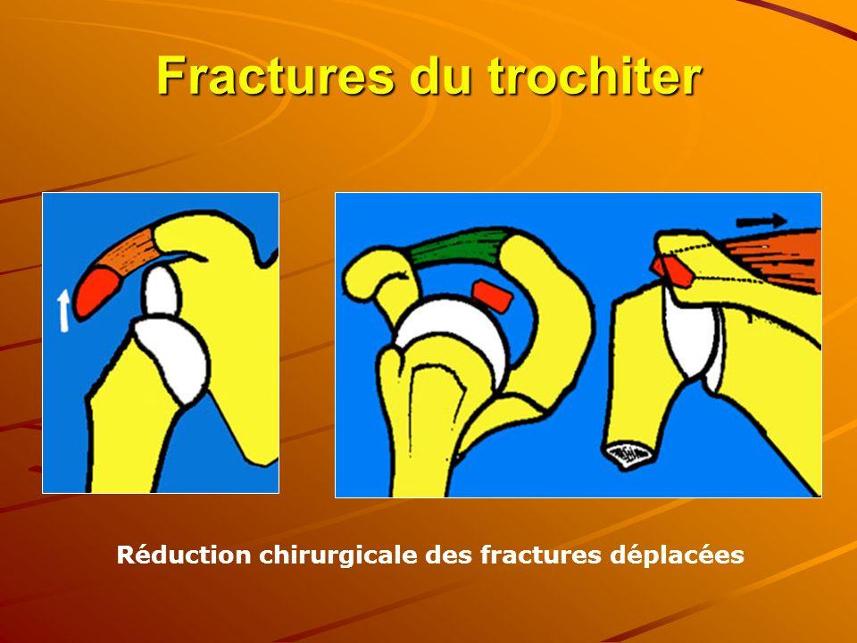 Fractures du trochiter Réduction chirurgicale des fractures déplacées