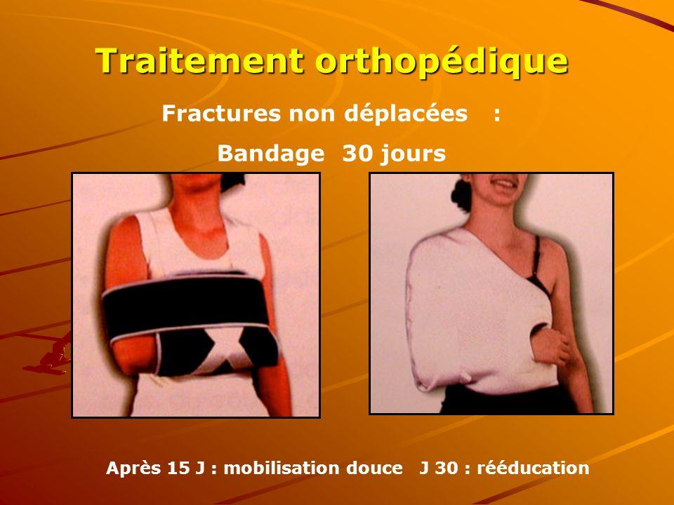 Fractures non déplacées : Bandage 30 jours Après 15 J : mobilisation douce J 30 : rééducation Traitement orthopédique