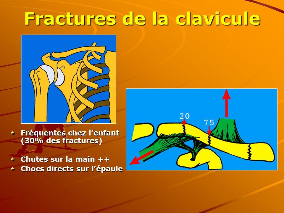 Fractures de la clavicule Fréquentes chez lenfant (30% des fractures) Chutes sur la main ++ Chocs directs sur lépaule