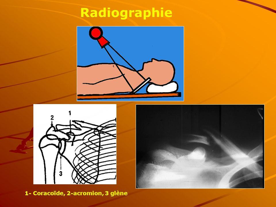 1- Coracoïde, 2-acromion, 3 glène Radiographie