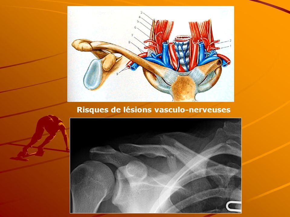 Risques de lésions vasculo-nerveuses