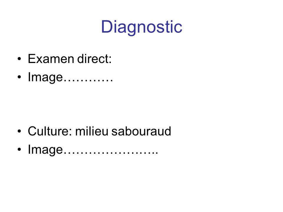 Diagnostic Examen direct: Image………… Culture: milieu sabouraud Image…………………..