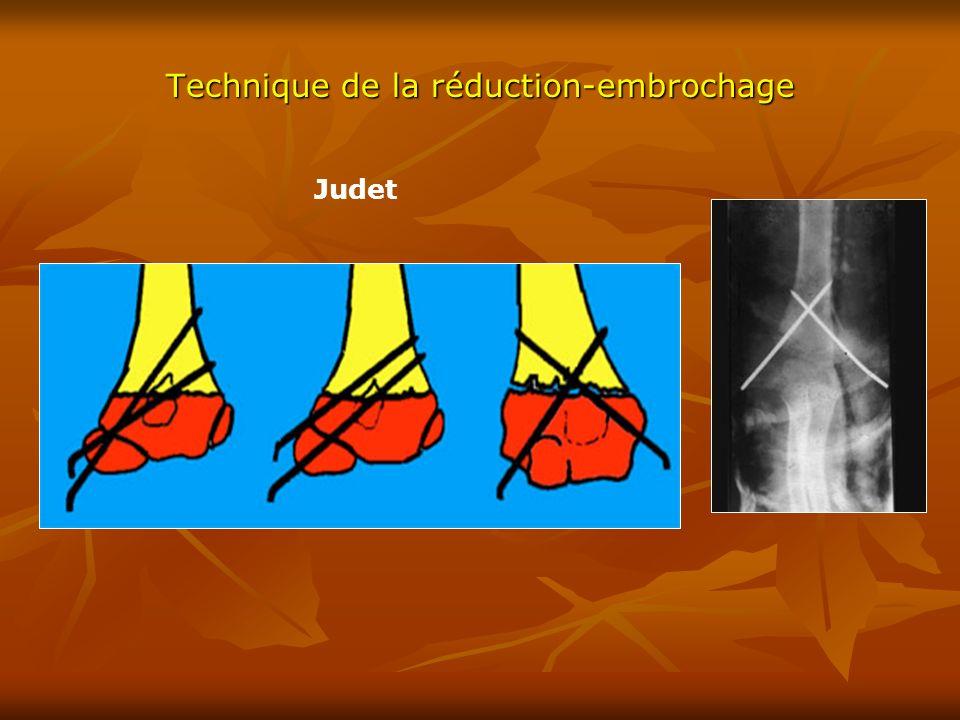 Technique de la réduction-embrochage Judet