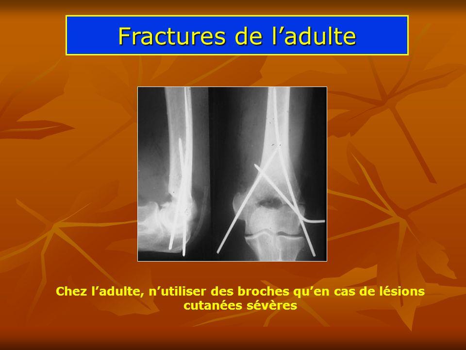 Fractures de ladulte Chez ladulte, nutiliser des broches quen cas de lésions cutanées sévères